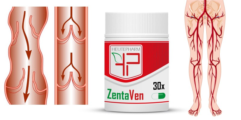 ZentaVen - Venenkapseln